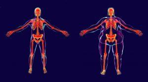 Sobrepeso-y-obesidad-más-allá-de-apariencia-UNAMGlobal