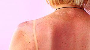 UNAM-ayuda-a-detectar-cáncer-de-piel-UNAMGlobal