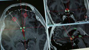 DBS-prueban-implantes-cerebrales-UNAMGlobal