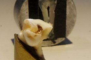 Tratamiento-láser-para-esmalte-dental-UNAMGlobal
