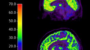 Biomarcador-suicida-en-el-cerebro-UNAMGlobal