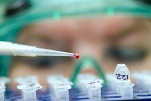 Fotonoticia-asistente-analiza-infección-peligrosa-UNAMGlobal