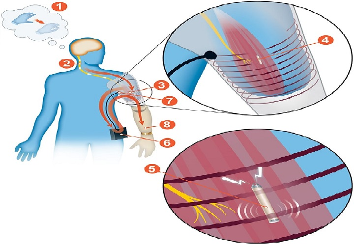Wireless-control-of-muscle-signal-UNAMGlobal