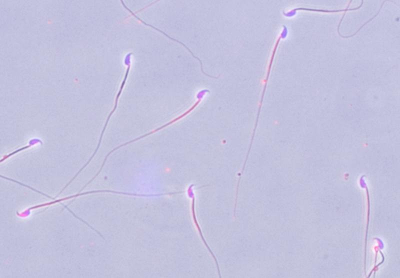 sperms-'sexar'-espermas-UNAMGlobal